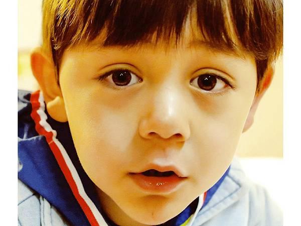 推薦 極致醫美 雙眼皮手術 縫雙眼皮 割雙眼皮 雙眼皮好處 雙眼皮膠 雙眼皮貼 假睫毛 危險