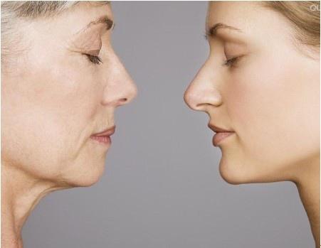 推薦極致醫美 下顎線治療 墊下巴 肌膚鬆弛老化 電波拉皮 超音波拉皮 膠原蛋白 下巴線條 臉部線條 瘦臉 臉型雕塑 價錢 (8)