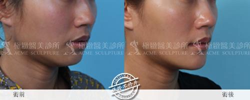 推薦極致醫美 下顎線治療 墊下巴 肌膚鬆弛老化 電波拉皮 超音波拉皮 膠原蛋白 下巴線條 臉部線條 瘦臉 臉型雕塑 價錢 (11)