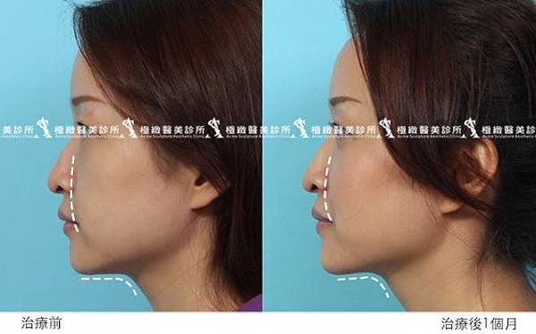 推薦極致醫美 下顎線治療 墊下巴 肌膚鬆弛老化 電波拉皮 超音波拉皮 膠原蛋白 下巴線條 臉部線條 瘦臉 臉型雕塑 價錢 (3)