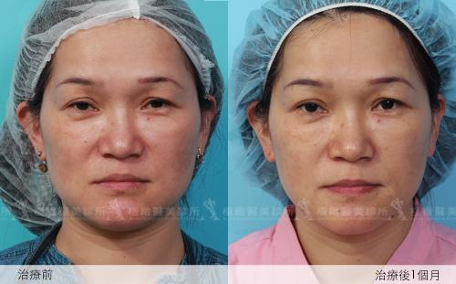 推薦極致醫美 下顎線治療 墊下巴 肌膚鬆弛老化 電波拉皮 超音波拉皮 膠原蛋白 下巴線條 臉部線條 瘦臉 臉型雕塑 價錢 (4)