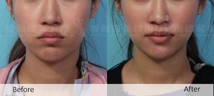 推薦極致醫美 下顎線治療 墊下巴 肌膚鬆弛老化 電波拉皮 超音波拉皮 膠原蛋白 下巴線條 臉部線條 瘦臉 臉型雕塑 價錢 (5)