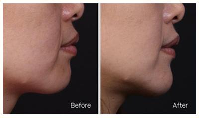 推薦極致醫美 下顎線治療 墊下巴 肌膚鬆弛老化 電波拉皮 超音波拉皮 膠原蛋白 下巴線條 臉部線條 瘦臉 臉型雕塑 價錢 (18)