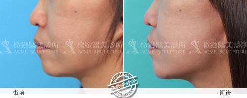 推薦極致醫美 下顎線治療 墊下巴 肌膚鬆弛老化 電波拉皮 超音波拉皮 膠原蛋白 下巴線條 臉部線條 瘦臉 臉型雕塑 價錢 (19)