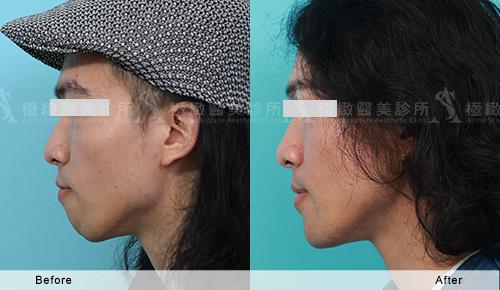Chin-case-30