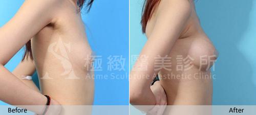 極緻音波引力自體脂肪豐胸隆乳自體脂肪移植超音波抽脂溶脂體雕減重馬甲線蜜桃臀手術多少錢費用評價 (5)