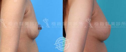 極緻音波引力自體脂肪豐胸隆乳自體脂肪移植超音波抽脂溶脂體雕減重馬甲線蜜桃臀手術多少錢費用評價 (6)
