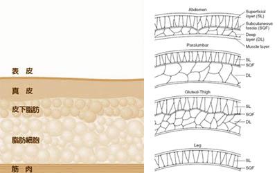 極緻雙波脂雕超音波抽脂手術自體脂肪移植豐臀完全臀線蜜桃臀 (2)