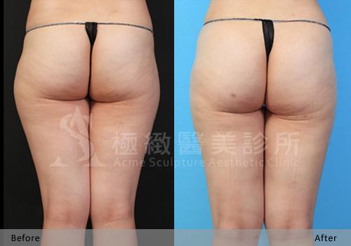 極緻雙波脂雕超音波抽脂手術自體脂肪移植豐臀完全臀線蜜桃臀 (7)