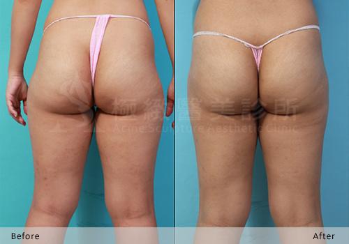 極緻雙波脂雕超音波抽脂手術自體脂肪移植豐臀完全臀線蜜桃臀 (4)