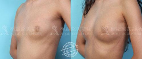 breast.34