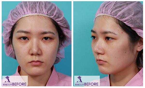 01雙眼皮 推薦 雙眼皮 手術 提眉  提眉手術 手術 眼眉下垂 雙眼皮 荊偉政.jpg