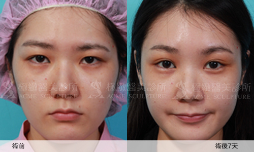 2雙眼皮 推薦 雙眼皮 手術 提眉  提眉手術 手術 眼眉下垂 雙眼皮 荊偉政.jpg