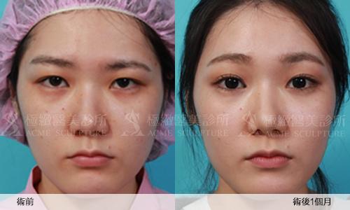 3雙眼皮 推薦 雙眼皮 手術 提眉  提眉手術 手術 眼眉下垂 雙眼皮 荊偉政.jpg