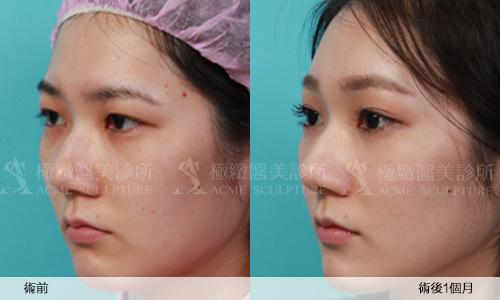 4雙眼皮 推薦 雙眼皮 手術 提眉  提眉手術 手術 眼眉下垂 雙眼皮 荊偉政.jpg