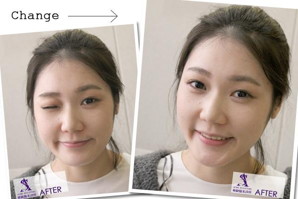 6雙眼皮 推薦 雙眼皮 手術 提眉  提眉手術 手術 眼眉下垂 雙眼皮 荊偉政.jpg