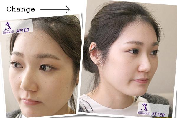 7雙眼皮 推薦 雙眼皮 手術 提眉  提眉手術 手術 眼眉下垂 雙眼皮 荊偉政.jpg