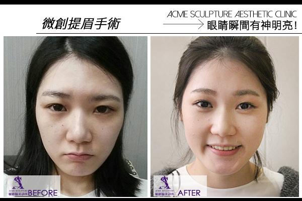 微創提眉 雙眼皮手術 極緻醫美