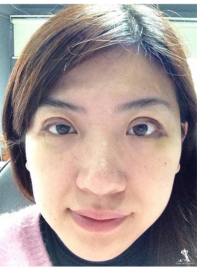雙眼皮  推薦 雙眼皮 手術 雙眼皮手術 雙眼皮貼 雙眼皮開眼頭開眼頭費用開眼頭價格開眼頭疤痕開眼頭恢復期雙眼皮恢復期雙眼皮 雙眼皮 極緻醫美割雙眼皮切割式雙眼皮廖家慶雙眼皮大小眼雙眼皮 消腫 雙眼皮 推薦 雙眼皮 眼線