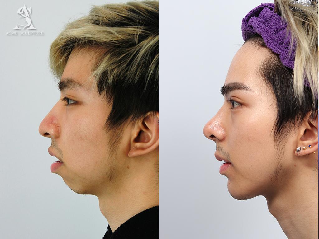 隆鼻 推薦 隆鼻 恢復期 隆鼻 價錢 隆鼻 費用 隆鼻 結構式隆鼻 推薦 結構式隆鼻 敲鼻骨二段式隆鼻三段式隆鼻隆鼻手術費用隆鼻手術恢復期隆鼻價格韓式隆鼻