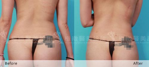 抽脂費用抽脂價格抽脂手術超音波抽脂減肥威塑抽脂抽脂 推薦 大腿抽脂腹部抽脂黃金z波抽脂荊偉政抽脂極緻醫美抽脂推薦雙波抽脂雙波脂雕4D震波12.jpg