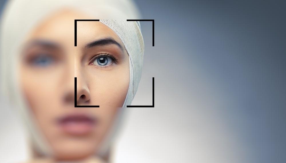 雙眼皮 推薦 雙眼皮 雙眼皮手術 雙眼皮貼 雙眼皮 縫線式雙眼皮雙眼皮恢復期極緻醫美 雙眼皮 消腫訂書針雙眼皮切割式雙眼皮01