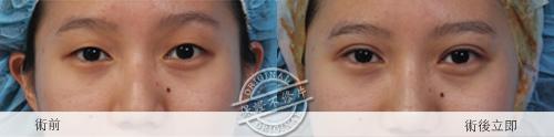 雙眼皮 推薦 雙眼皮  雙眼皮手術 雙眼皮貼 雙眼皮  縫線式雙眼皮雙眼皮恢復期極緻醫美 雙眼皮 消腫訂書針雙眼皮切割式雙眼皮04