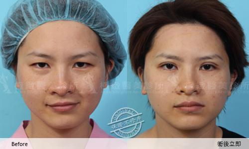 雙眼皮 推薦 雙眼皮  雙眼皮手術 雙眼皮貼 雙眼皮  縫線式雙眼皮雙眼皮恢復期極緻醫美 雙眼皮 消腫訂書針雙眼皮切割式雙眼皮05