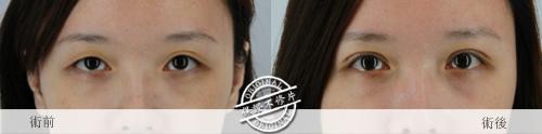 雙眼皮 推薦 雙眼皮  雙眼皮手術 雙眼皮貼 雙眼皮  縫線式雙眼皮雙眼皮恢復期極緻醫美 雙眼皮 消腫訂書針雙眼皮切割式雙眼皮13