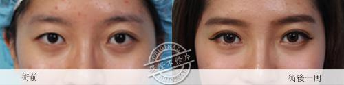 雙眼皮縫雙眼我訂書針雙眼皮雙眼皮手術割雙眼皮