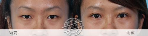 雙眼皮縫雙眼我訂書針雙眼皮雙眼皮手術割雙眼皮03