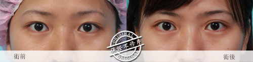 雙眼皮縫雙眼我訂書針雙眼皮雙眼皮手術割雙眼皮07
