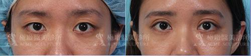 雙眼皮縫雙眼我訂書針雙眼皮雙眼皮手術割雙眼皮08