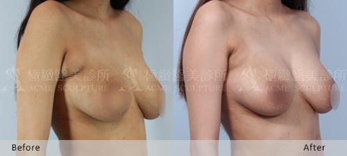 抽脂手術超音波抽脂雙波抽脂自體脂肪隆乳豐胸台北極緻醫美推薦整型整形腋下除毛雷射除毛永久杏仁酸煥膚 (17)