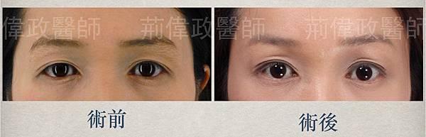 雙眼皮手術微創提眉提眉荊偉政極緻醫美