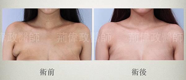 抽脂手術抽脂副乳手臂抽脂荊偉政極緻醫美雙波脂雕超音波抽脂威塑抽脂黃金z波抽脂