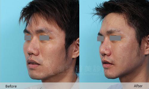 facial-contouring_023