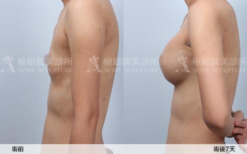 余德毅醫師極緻醫美豐胸隆乳果凍矽膠豐胸果凍矽膠隆乳03