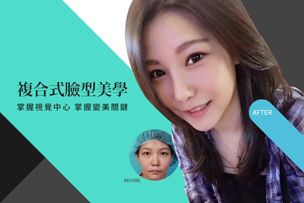 雙眼皮手術隆鼻手術隆鼻雙眼皮結構式隆鼻極緻醫美雙眼皮 推薦隆鼻推薦隆鼻費用.jpg