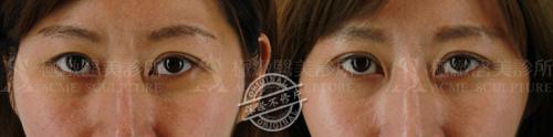 雙眼皮推薦雙眼皮手術雙眼皮消腫割雙眼皮縫雙眼皮極緻醫美09
