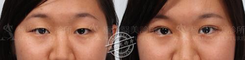 雙眼皮推薦雙眼皮手術雙眼皮消腫割雙眼皮縫雙眼皮極緻醫美04
