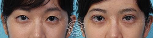 雙眼皮推薦雙眼皮手術雙眼皮消腫割雙眼皮縫雙眼皮極緻醫美08