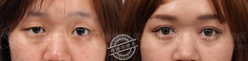 雙眼皮推薦雙眼皮手術雙眼皮消腫割雙眼皮縫雙眼皮極緻醫美07