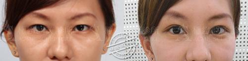 雙眼皮推薦雙眼皮手術雙眼皮消腫割雙眼皮縫雙眼皮極緻醫美06