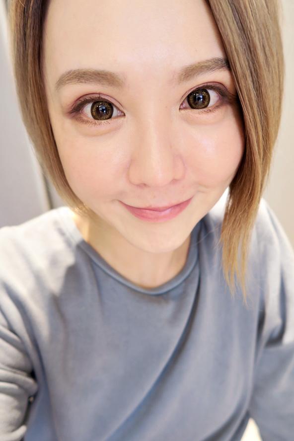 極緻醫美自體脂防豐唇余德毅醫師 (5).jpg