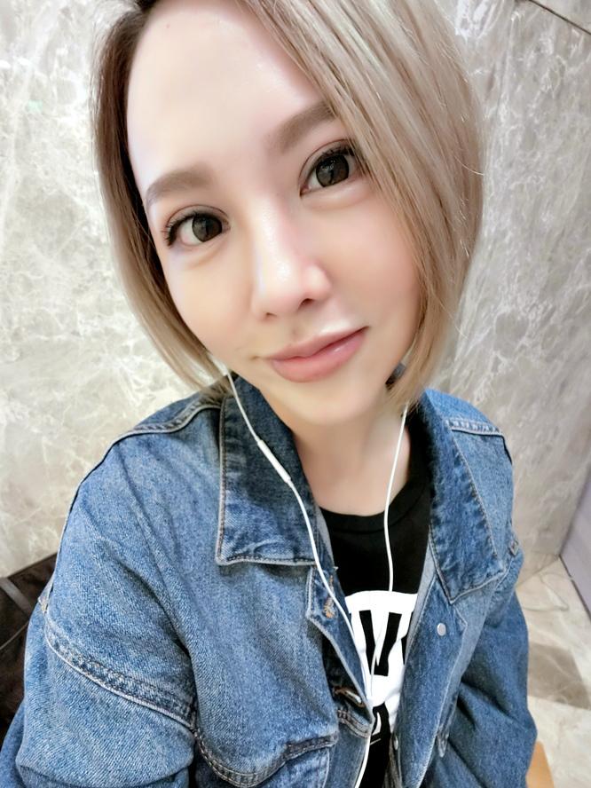 極緻醫美自體脂防豐唇余德毅醫師 (20).jpg
