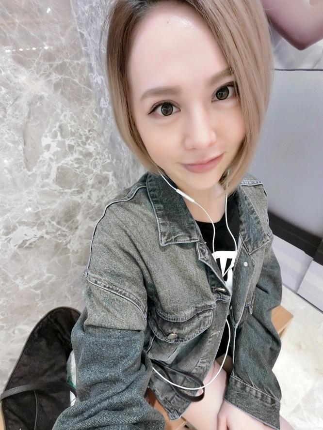 極緻醫美自體脂防豐唇余德毅醫師 (22).jpg
