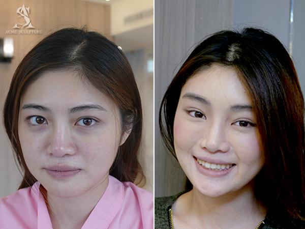 提眉內視鏡提眉雙眼皮手術極緻醫美雙眼皮眼皮下垂提眉手術04.jpg