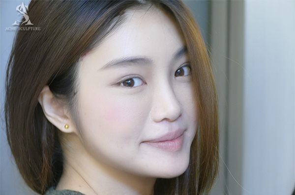 提眉內視鏡提眉雙眼皮手術極緻醫美雙眼皮眼皮下垂提眉手術06.jpg