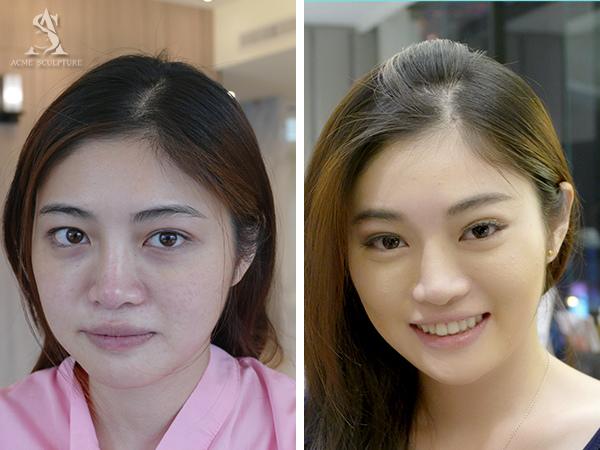 提眉內視鏡提眉雙眼皮手術極緻醫美雙眼皮眼皮下垂提眉手術08.jpg